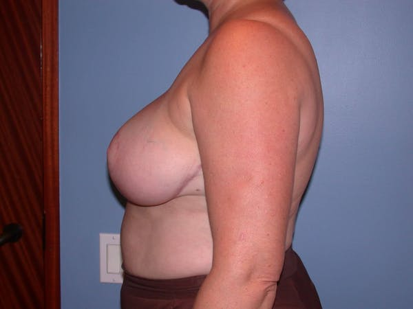 Breast Reduction Gallery - Patient 4757272 - Image 6