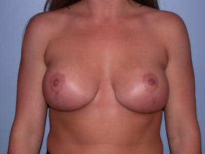 Breast Lift Gallery - Patient 4757274 - Image 2