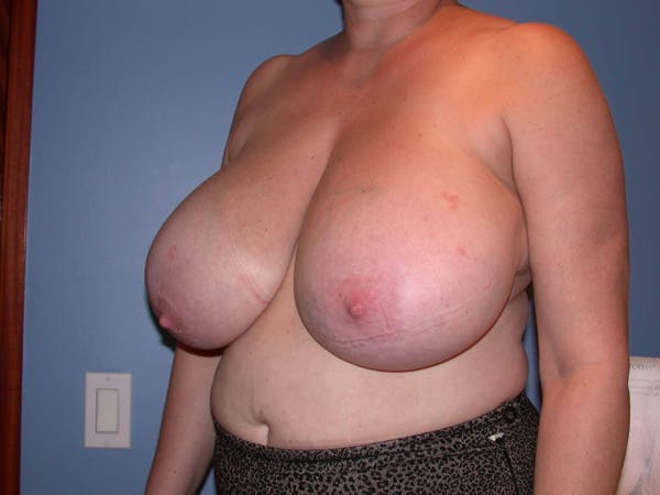 Breast Reduction Gallery - Patient 4757272 - Image 7