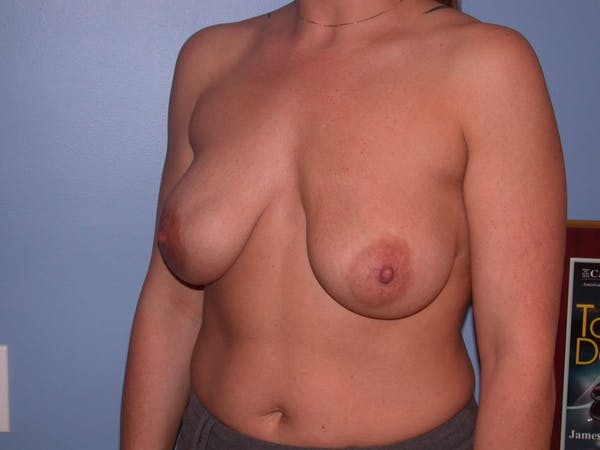 Breast Lift Gallery - Patient 4757274 - Image 3