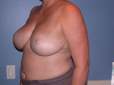 Breast Reduction Gallery - Patient 4757272 - Image 8