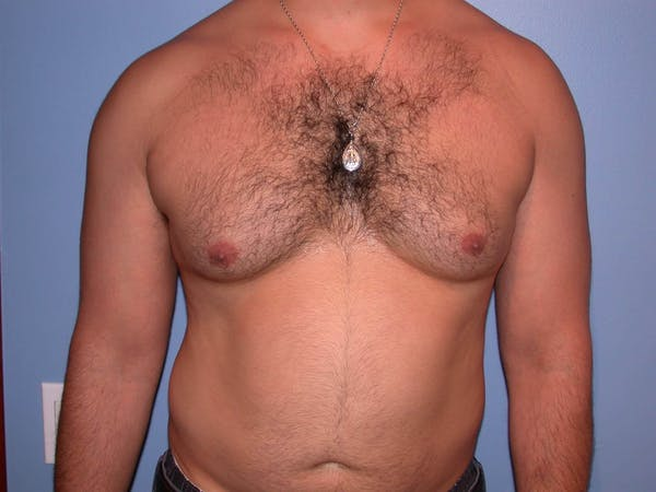 Gynecomastia Gallery - Patient 4757278 - Image 1