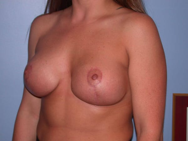 Breast Lift Gallery - Patient 4757274 - Image 4