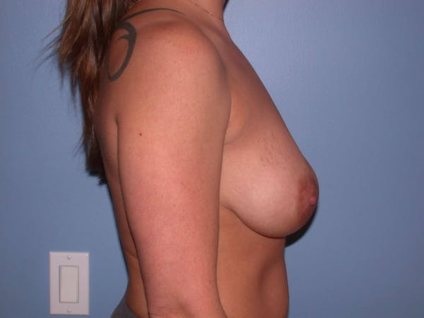 Breast Lift Gallery - Patient 4757274 - Image 5