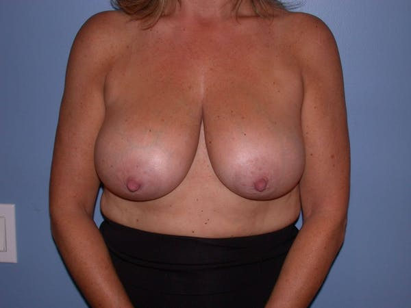 Breast Reduction Gallery - Patient 4757282 - Image 1