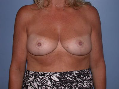 Breast Reduction Gallery - Patient 4757282 - Image 2