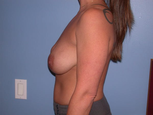 Breast Lift Gallery - Patient 4757274 - Image 7
