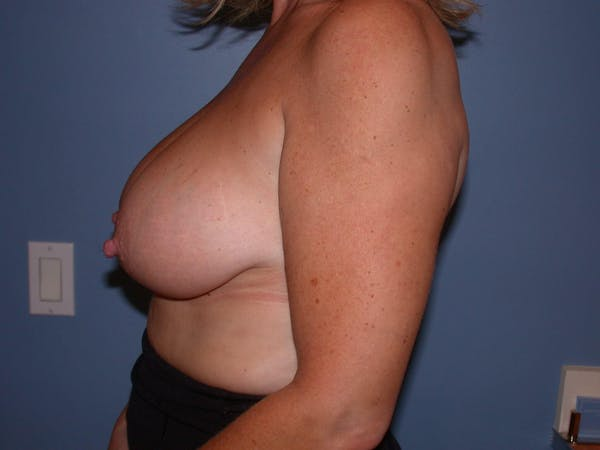 Breast Reduction Gallery - Patient 4757282 - Image 3
