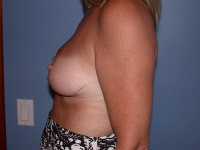 Breast Reduction Gallery - Patient 4757282 - Image 4