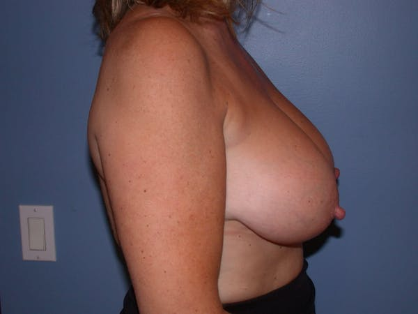 Breast Reduction Gallery - Patient 4757282 - Image 5