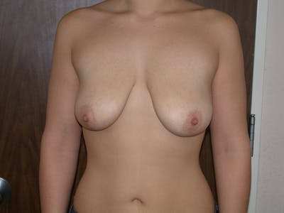 Breast Lift Gallery - Patient 4757284 - Image 1
