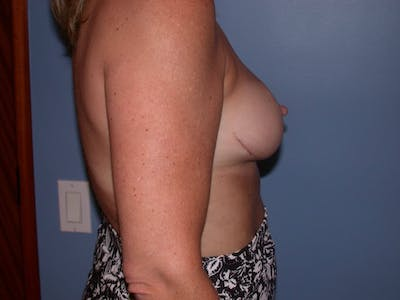 Breast Reduction Gallery - Patient 4757282 - Image 6