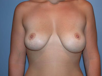 Breast Lift Gallery - Patient 4757284 - Image 2