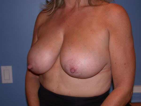 Breast Reduction Gallery - Patient 4757282 - Image 7