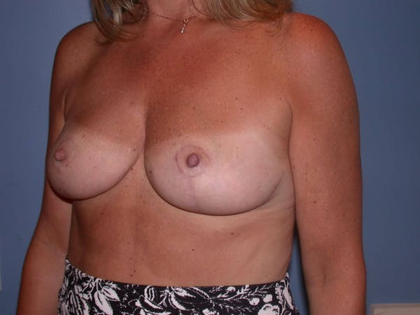 Breast Reduction Gallery - Patient 4757282 - Image 8