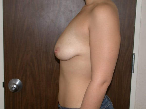 Breast Lift Gallery - Patient 4757284 - Image 3