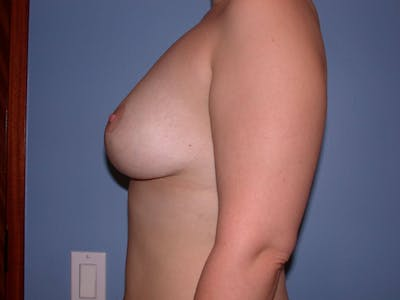 Breast Lift Gallery - Patient 4757284 - Image 4