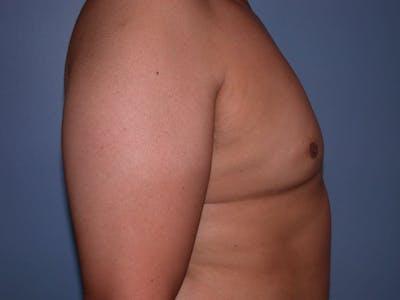 Gynecomastia Gallery - Patient 4757286 - Image 2