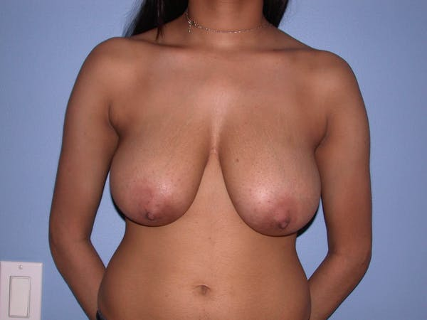 Breast Reduction Gallery - Patient 4757287 - Image 1