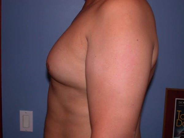 Gynecomastia Gallery - Patient 4757286 - Image 3