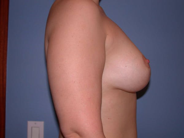 Breast Lift Gallery - Patient 4757284 - Image 6