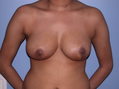 Breast Reduction Gallery - Patient 4757287 - Image 2