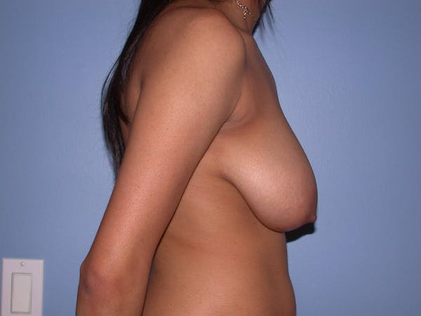 Breast Reduction Gallery - Patient 4757287 - Image 3