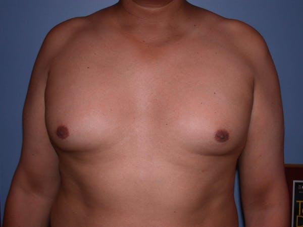 Gynecomastia Gallery - Patient 4757286 - Image 5