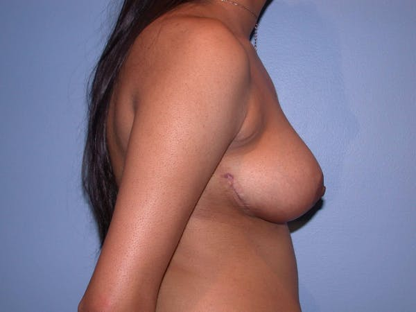 Breast Reduction Gallery - Patient 4757287 - Image 4