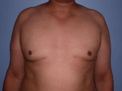 Gynecomastia Gallery - Patient 4757286 - Image 6