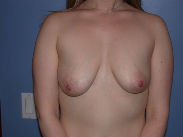Breast Lift Gallery - Patient 4757290 - Image 1