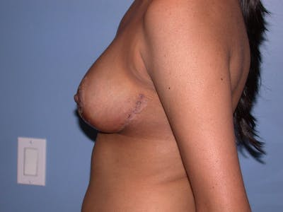 Breast Reduction Gallery - Patient 4757287 - Image 6