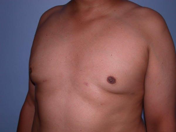 Gynecomastia Gallery - Patient 4757286 - Image 8