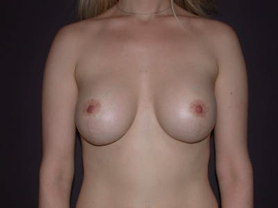 Breast Lift Gallery - Patient 4757290 - Image 2