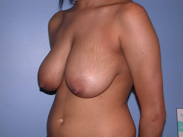 Breast Reduction Gallery - Patient 4757287 - Image 7