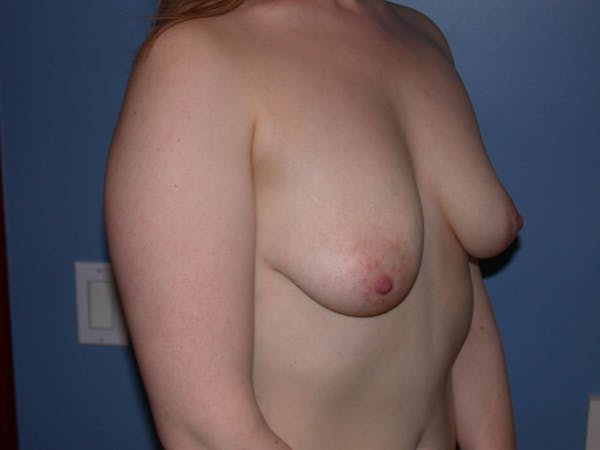 Breast Lift Gallery - Patient 4757290 - Image 3