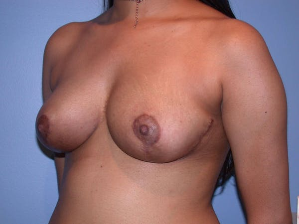 Breast Reduction Gallery - Patient 4757287 - Image 8