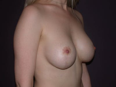 Breast Lift Gallery - Patient 4757290 - Image 4