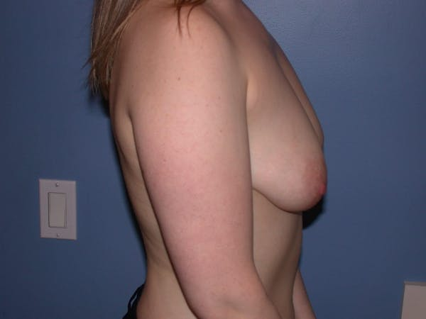 Breast Lift Gallery - Patient 4757290 - Image 5