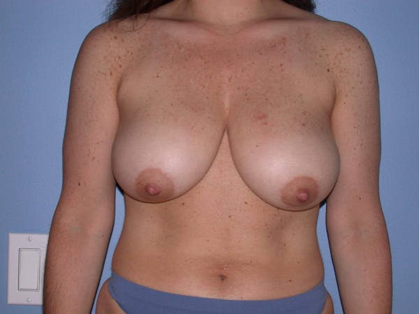 Breast Reduction Gallery - Patient 4757297 - Image 1