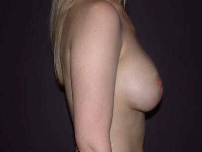 Breast Lift Gallery - Patient 4757290 - Image 6