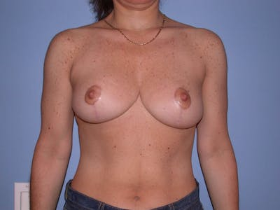 Breast Reduction Gallery - Patient 4757297 - Image 2