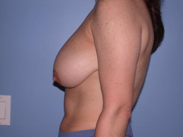 Breast Reduction Gallery - Patient 4757297 - Image 3
