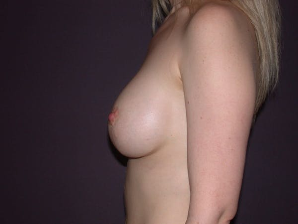 Breast Lift Gallery - Patient 4757290 - Image 8