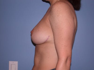 Breast Reduction Gallery - Patient 4757297 - Image 4