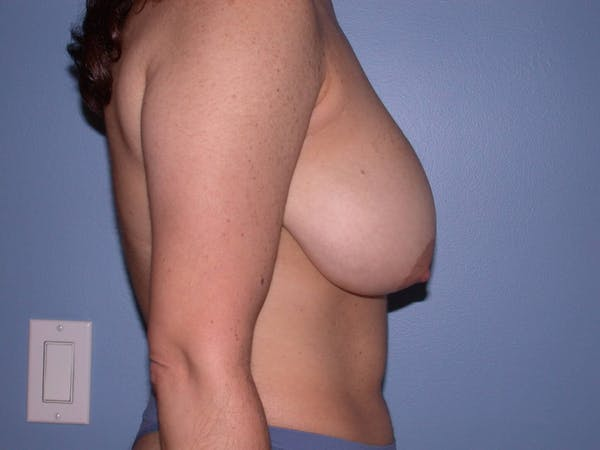 Breast Reduction Gallery - Patient 4757297 - Image 5