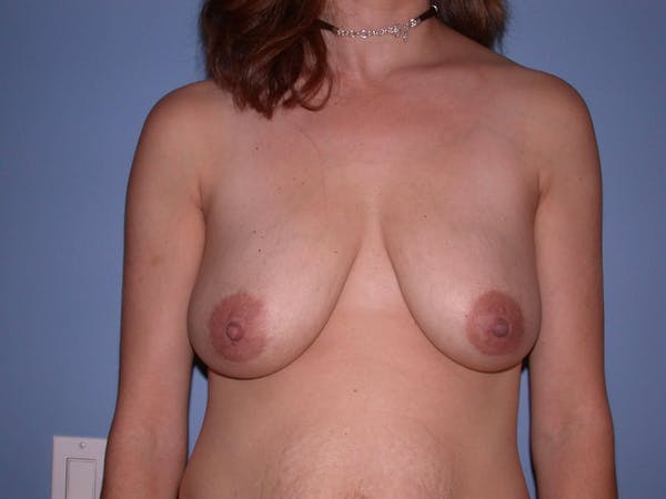 Breast Lift Gallery - Patient 4757299 - Image 1