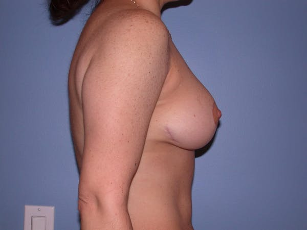 Breast Reduction Gallery - Patient 4757297 - Image 6
