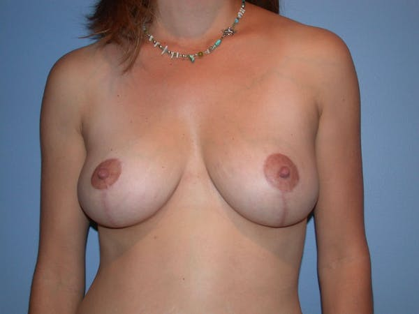 Breast Lift Gallery - Patient 4757299 - Image 2