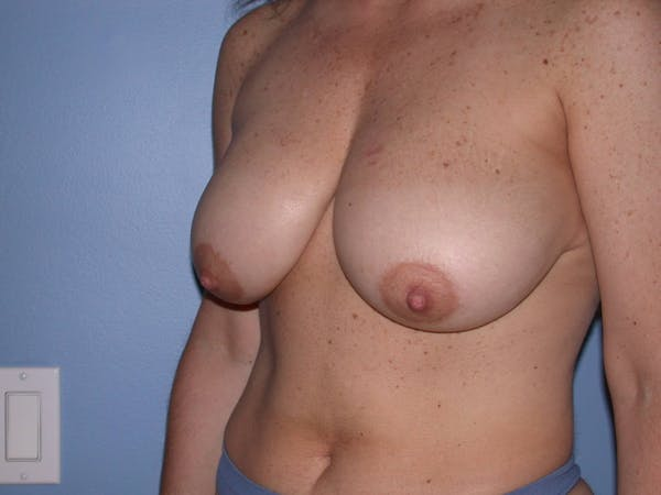 Breast Reduction Gallery - Patient 4757297 - Image 7